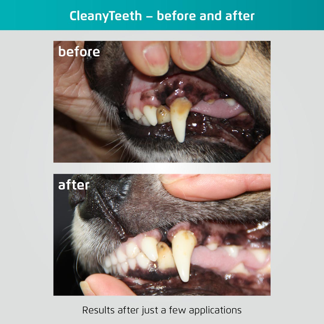 Corby Rutland & Stamford Teeth Cleaning